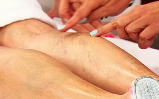 Причины и симптомы боли в ногах при варикозе