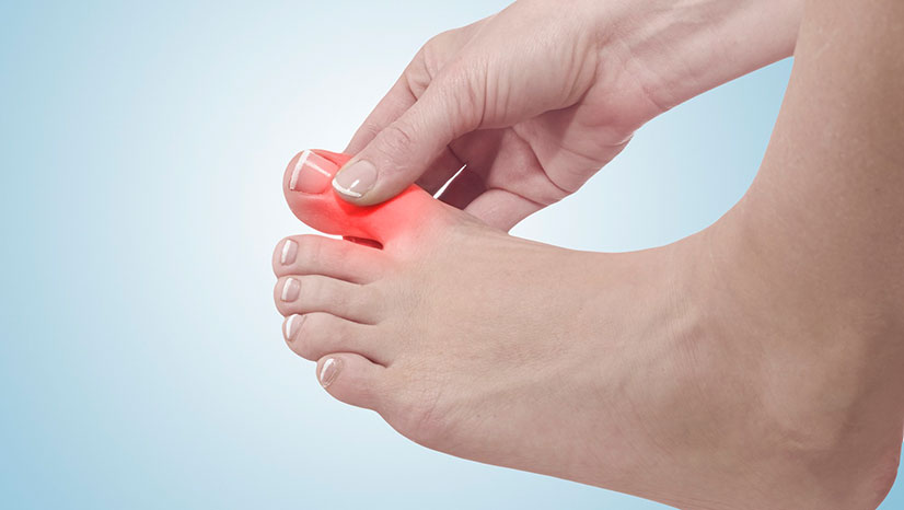 Ортопедическое лечение вальгусной деформации большого пальца
