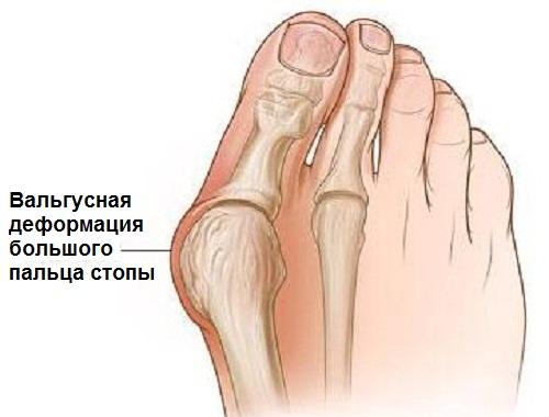 Боли в суставах стопы после бега болят суставы и бросает в жар